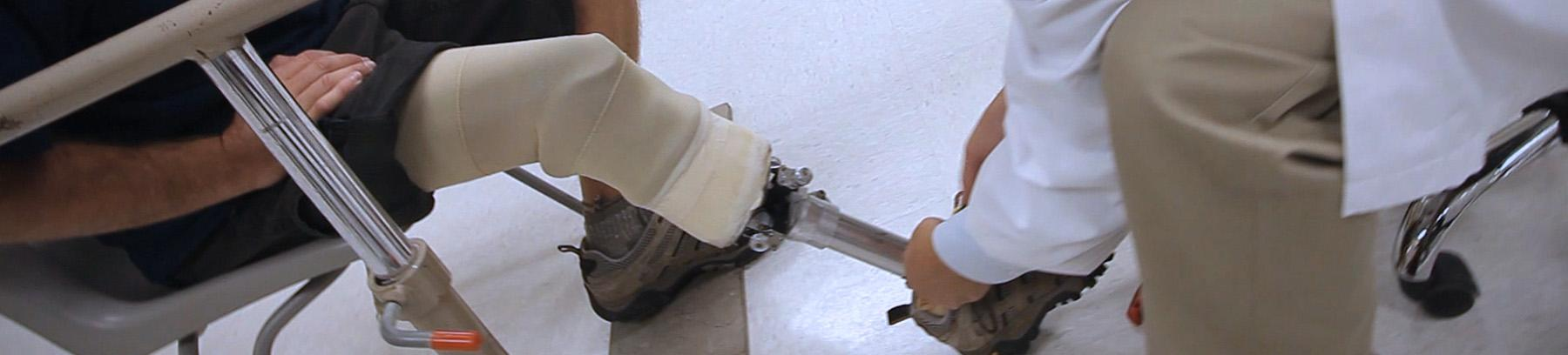 Person working on someone's prosthetic leg.